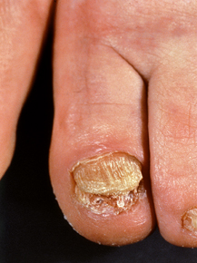 Quali le migliori targhe da un fungo di unghie
